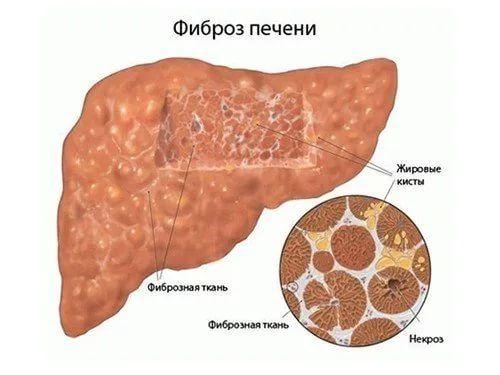 патогенез фиброза печени