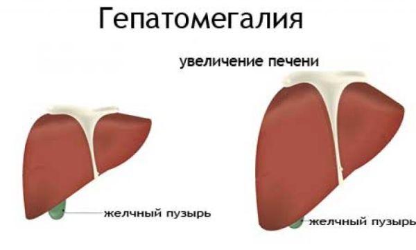 Фиброз 2 степени при гепатите с