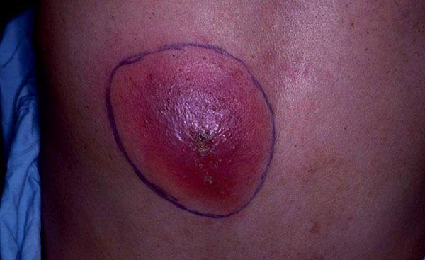 Гумозный сифилис