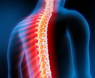 Спинная сухотка — симптомы и лечение