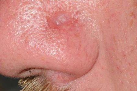 Отваливается нос при сифилисе фото — Центр женского здоровья