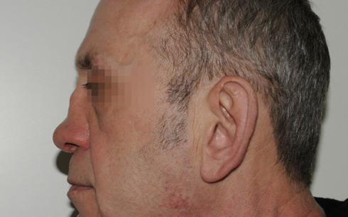 на фото вторичный сифилис носа