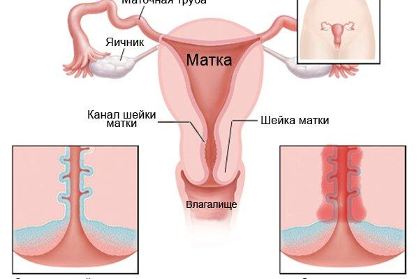 Белые сгустки при беременности