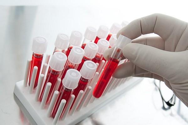 Как проявляется гепатит у женщин первые признаки