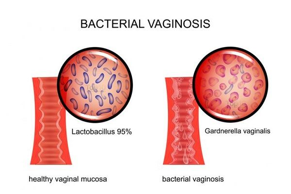 Как формируется вагина фото 735-371