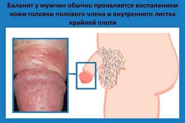 Выделяется сперма при запоре