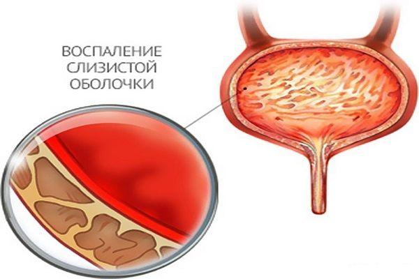 Вагинизация уретры при цистите что это такое