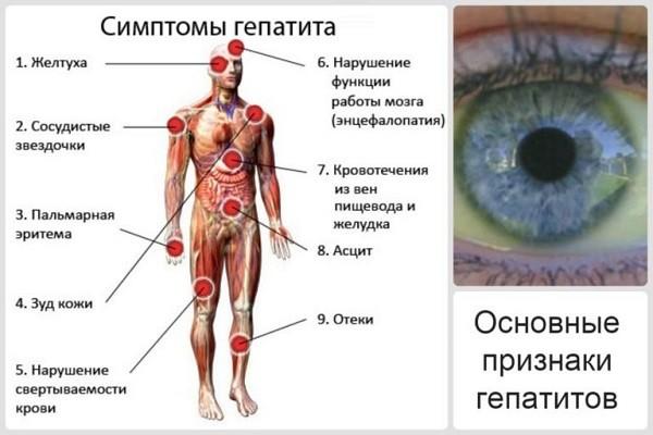Симптомы гепатита в и с лечение