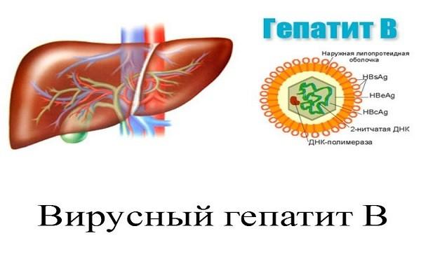 первые симптомы гепатита в у женщин