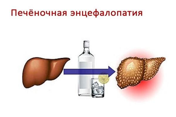 Гепатит б симптомы у мужчин лечение