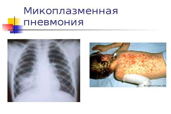 Клиническая картина микоплазменной пневмонии