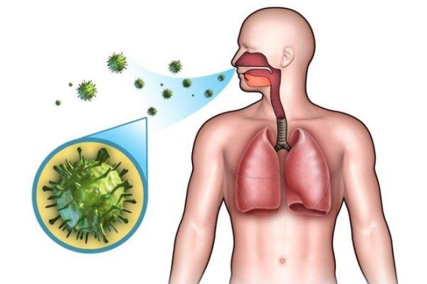 Микоплазмоз (микоплазменная инфекция) - Симптомы