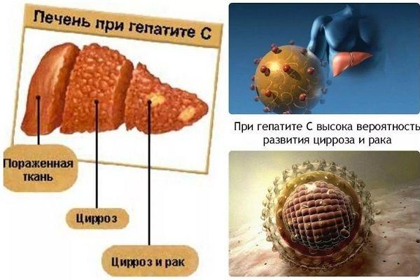 К чему может привести гепатит c
