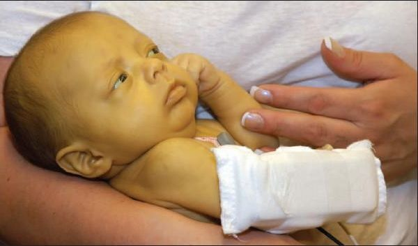 Новорожденный заболеет гепатитом с