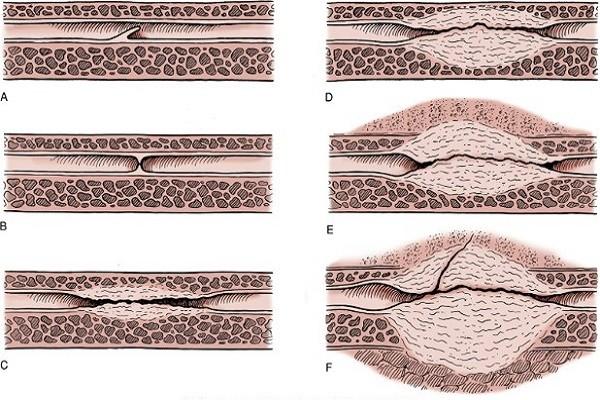 Операция на уретре у мужчин 21