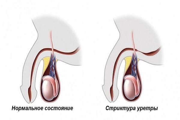 Операция на уретре у мужчин 19