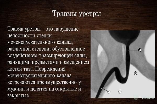 Стриктура уретры у мужчин 2
