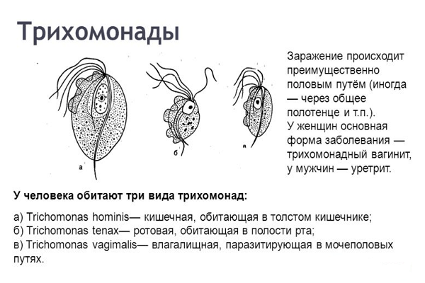 трихомонады