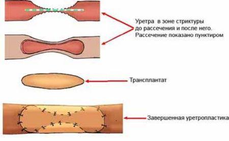 Операция на уретре у мужчин 31