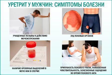 Симптомы и лечение уретрита у мужчин