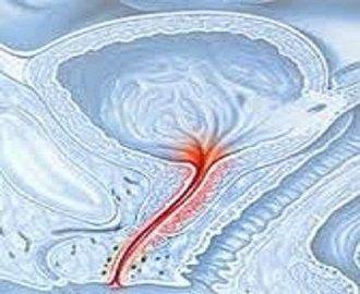 Современное лечение уретрита у женщин и его симптомы