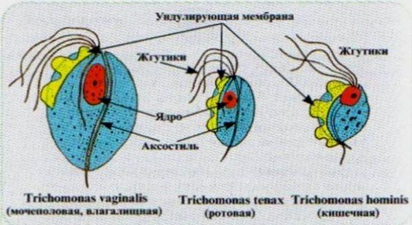 Трихомониаз полости рта