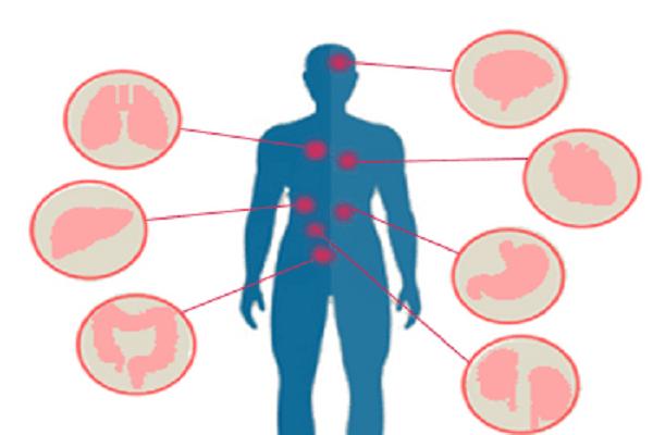 Что такое третичный сифилис