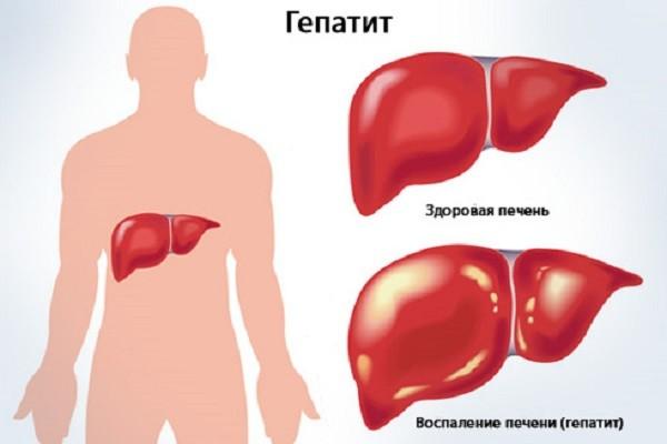 Хронич гепатит с симптомы