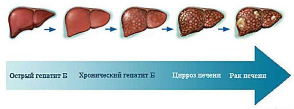 Почему болит печень при гепатите в