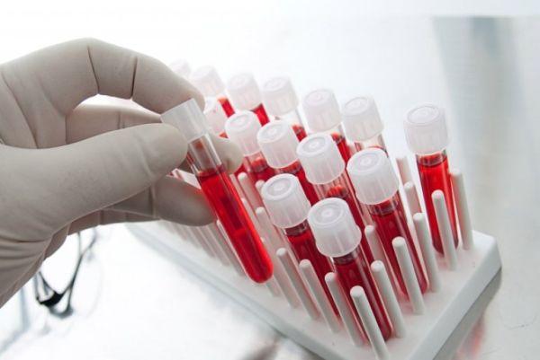 сколько живут с гепатитом в с лечением