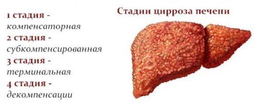 Особенностипоражения печенипри HCV