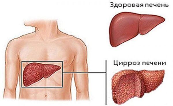Цирроз симптомы гепатит с