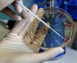 Лабораторная диагностика гонореи у женщин и мужчин