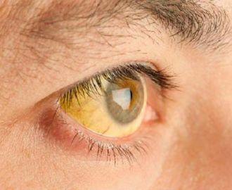 Клиническая картина гепатита В (Б)