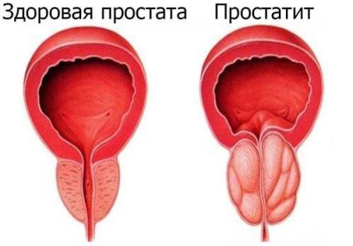 Простатиты у мужчин - признаки и симптомы на фото