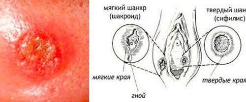 Как проявляет себя сифилис