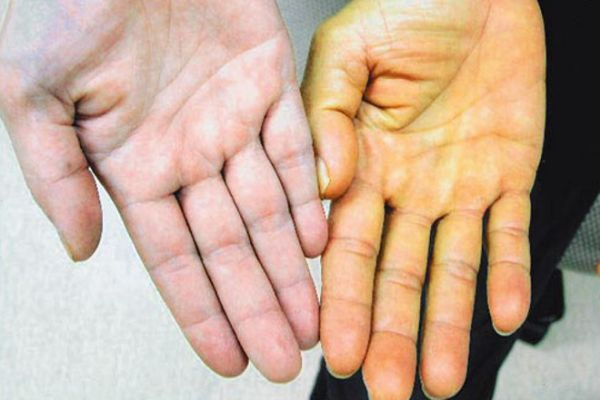 Сколько дней лечится гепатит а