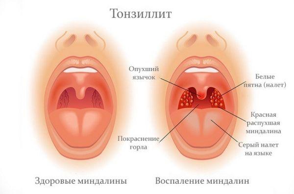 Оральный секс заболело горло