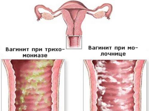 Резкий запах во влагалище росле секса