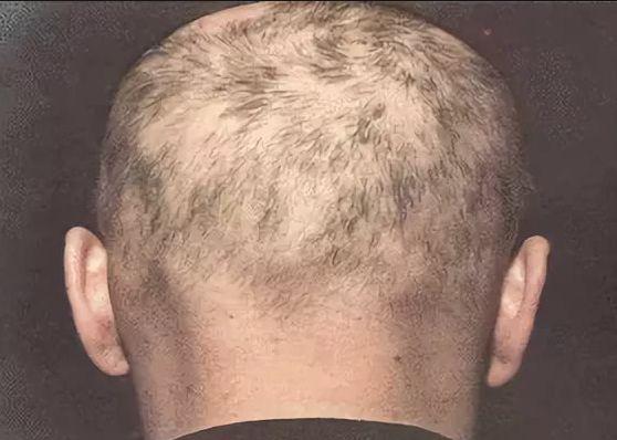 содержимое складчатая пахидермия кожи волосистой части головы МЧС