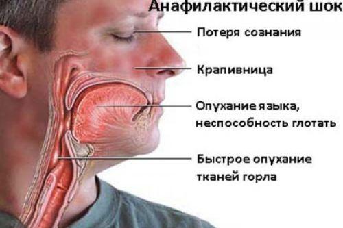 Реакция на прививку от гепатита в 4 месяца