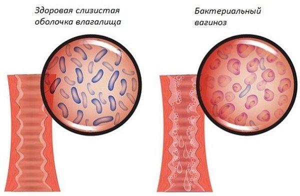 Выделения из клитора при беременности 7