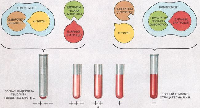 Какие анализы нужно сдать на сифилис