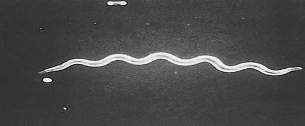 Вторичная форма сифилиса