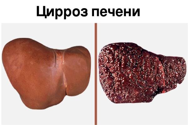 Стадии гепатита a