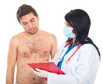 Как проявляется сифилис, через сколько дней первые симптомы?