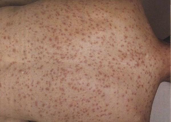 Выделения при сифилисе у мужчин и женщин