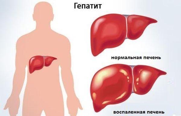 Положительный маркеры при гепатите с