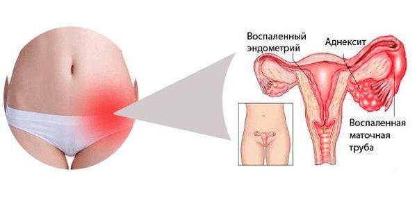 Вагинит атрофический кольпит в менопаузе  как с ним бороться