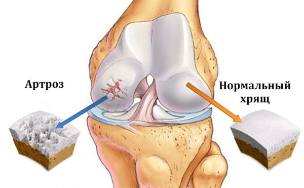 Как хламидии влияют на суставы: влияние хламидиоза на суставы и симптомы заболевания, лечение